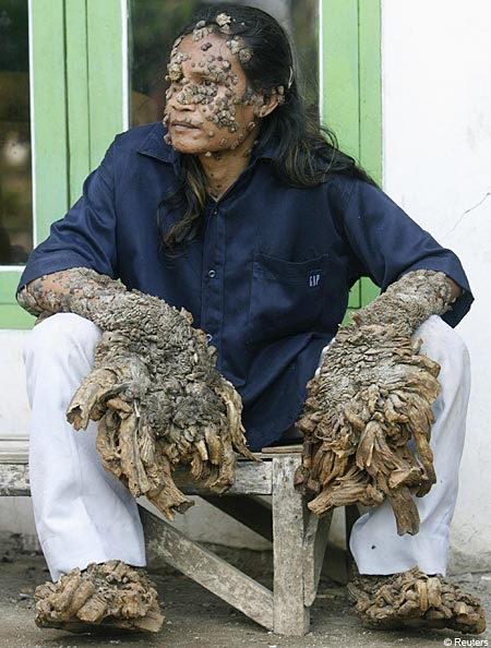 A Man Known as Tree Man Grows Bark like Warts on His Skin | Medical