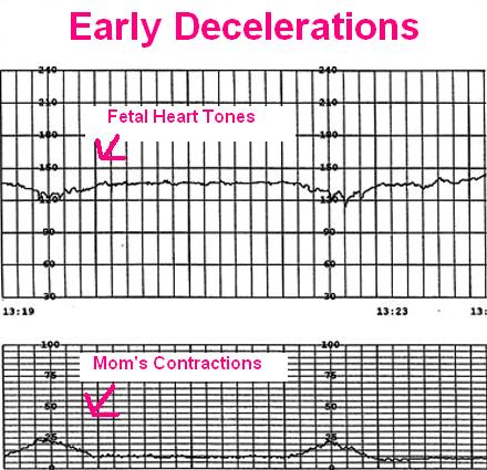 Early, Variable, and Late Decelerations