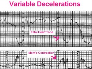 Early Variable And Late Decelerations