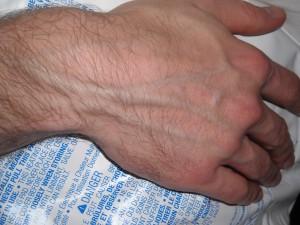 hand veins, large hand veins, vascularity,