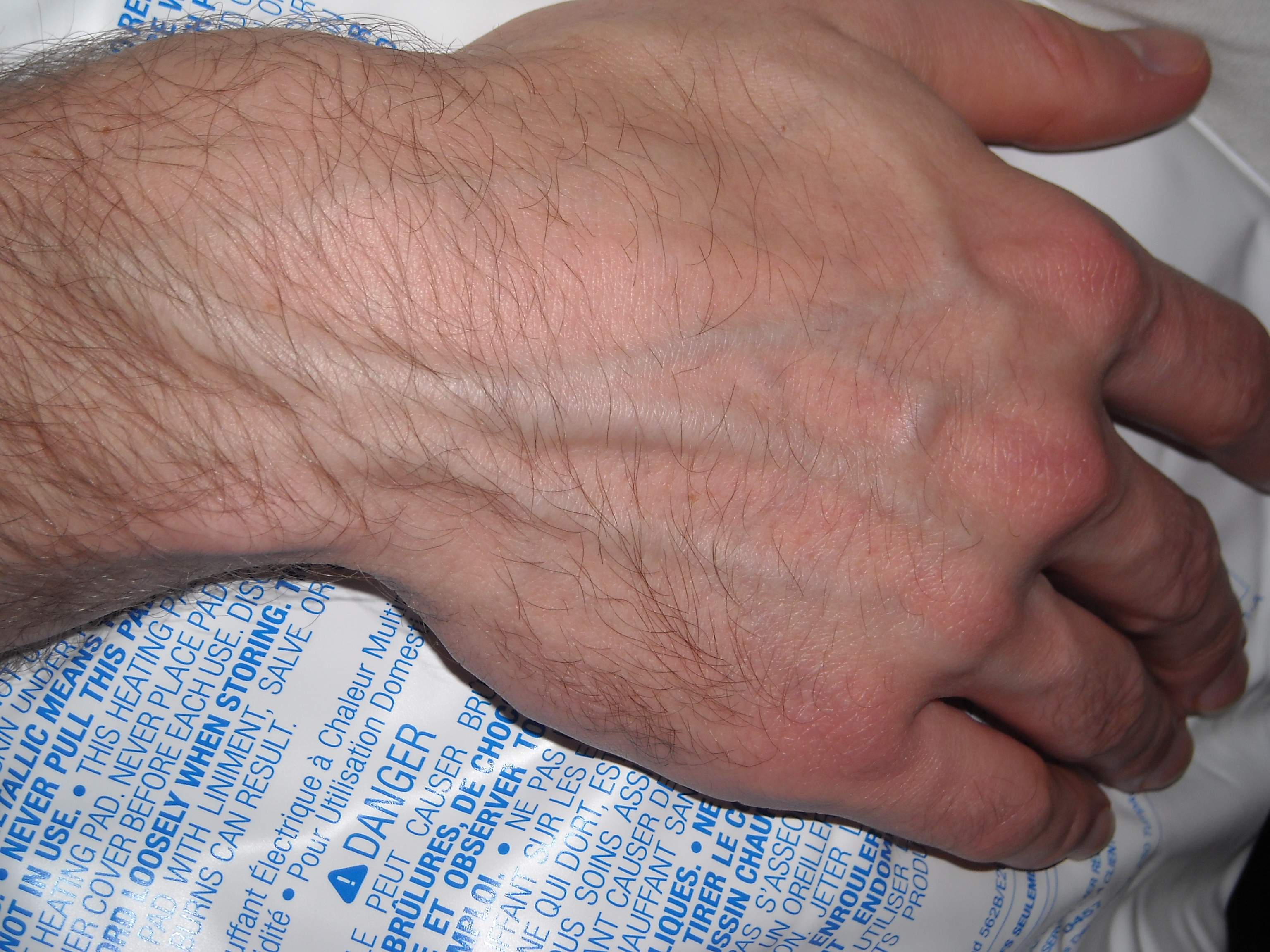 huge veins in arms