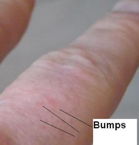Itchy bumps on fingers, eczema on hands, dishydrotic eczema, rash on fingers, food allergy