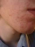 hives on face, cholinergic urticaria on chin, chin rash