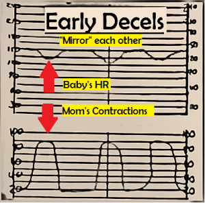early fetal decelerations, fetal heart monitoring