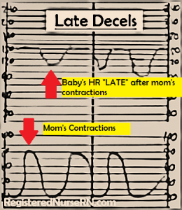 late fetal decelerations, fetal heart monitoring