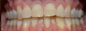 care plan impaired dentition, nursing care plan, crooked teeth,