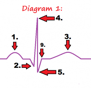 diagram-1-ekg-wave-quiz