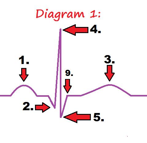 Electrocardiogram diagram blank electrical work wiring diagram ekg pqrst rhythm strip wave quiz anatomy pathophysiology rh registerednursern com circle diagram blank plot diagram ccuart Images