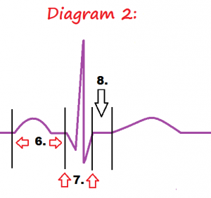 diagram-2-ekg-intervals