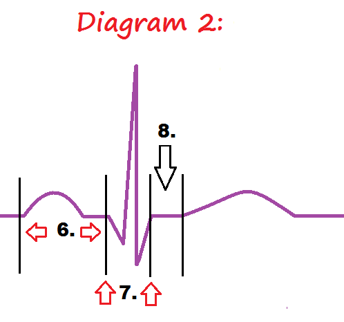 Ekg pqrst rhythm strip wave quiz anatomy pathophysiology diagram 2 ekg intervals ccuart