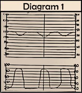 early fetal decelerations, fetal heart monitoring