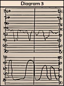 fetal variable decelerations, fetal heart monitoring