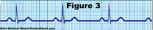 nsr EKG, normal sinus rhythm, ekg strips
