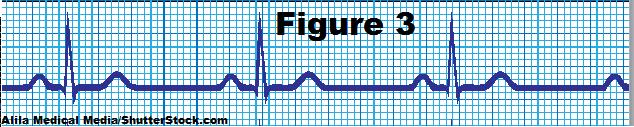 nsr EKG, normal sinus rhythm, ekg strips