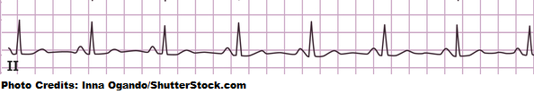 normal sinus rhythm ekg strip, heart rate quiz