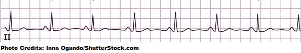 normal sinus rhythm ekg strip, heart rate quiz