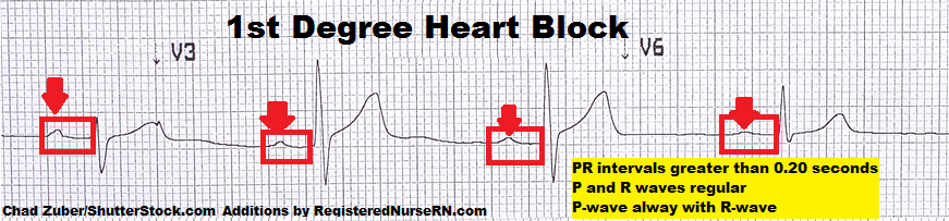 first degree heart block, av block, ekg strips