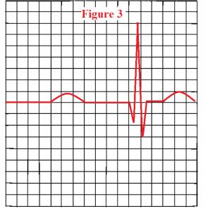 Abnormal-PR-interval