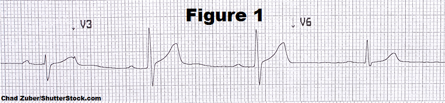 1st degree heart block, av block, heart blocks ekg strips