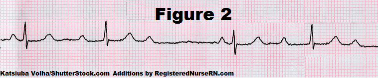 EKG Rhythm Practice Quiz for AV Heart Blocks | 1st Degree, 2nd