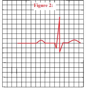 PR-interval-ekg-quiz