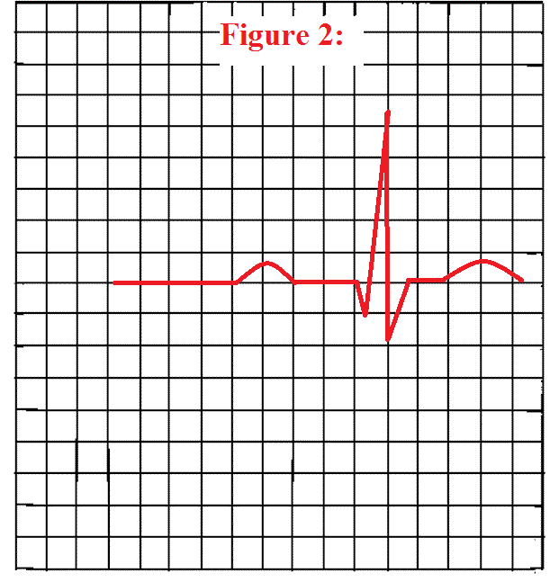 How To Measure The Pr Interval On An Ekg Strip Pr Interval Ekg Quiz