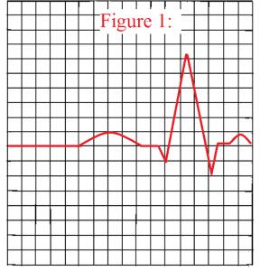 QRS-complex-ekg