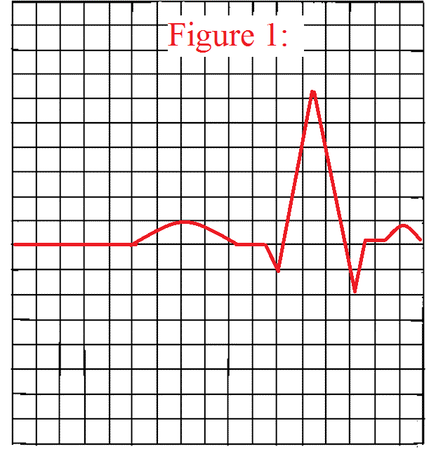 How To Measure A Qrs Complex On An Ekg Strip Qrs Complex