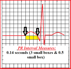 how-to-measure-pr-interval