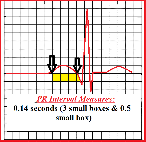 How to Measure the PR Interval on an EKG Strip | PR