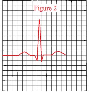 normal-QRS-complex