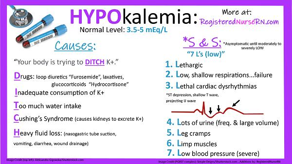 hypokalemia, nclex, nursing, electrolytes