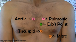 heart-auscultation-sites-on-chest