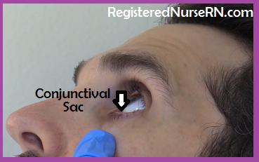 instill eye drops, conjunctival sac