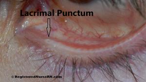 Lacrimal Punctum, Tear Duct Hole, Small Hole Eyelid
