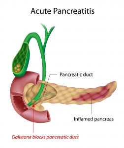 pancreatitis, gallstones, acute pancreatitis, nclex review