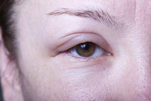 acute glomerulonephritis, nclex, edema