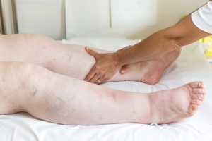 edema, nephrotic syndrome, nclex