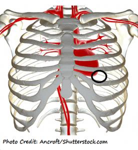 nclex practice questions, hotspot, heart sounds, apical pulse