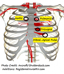 heart sounds, aortic, pulmonic, mitral, tricuspid valves