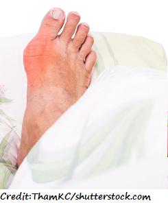 gout, big toe, picture of gout, nclex, nursing