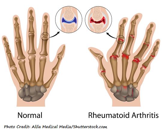 rheumatoid arthritis, ra, nclex, review, nursing
