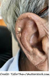 gout, tophi, ear, tophus