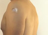 transdermal patch, application, nursing