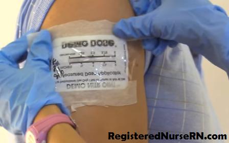 nitroglycerin ointment application, nitrobid, nitropaste, nursing