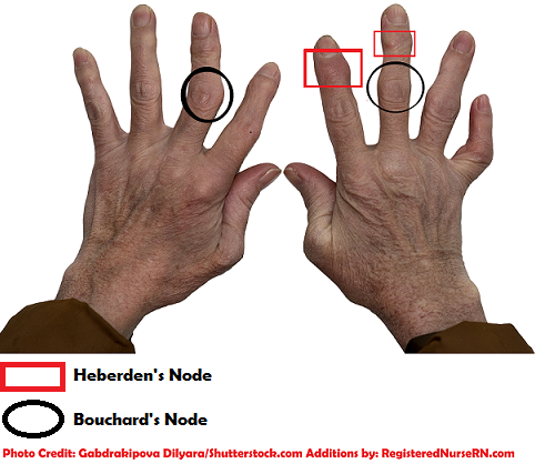 heberden's node, bouchard's node, osteoarthritis, nclex, nursing