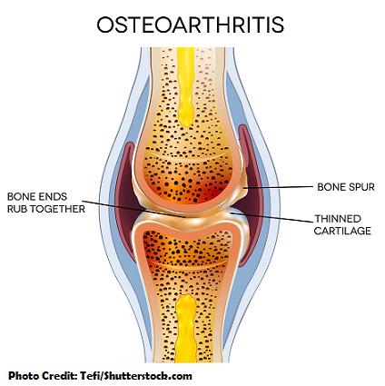 osteoarthritis, nclex, nursing, interventions