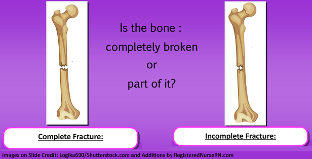 bone fractures, nursing, nclex, types