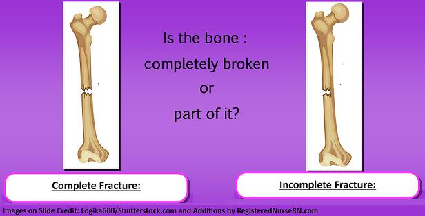 bone fractures, nursing, nclex, types