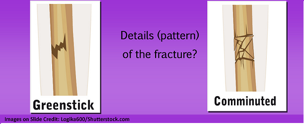 bone fracture types, greenstick, comminuted, nclex